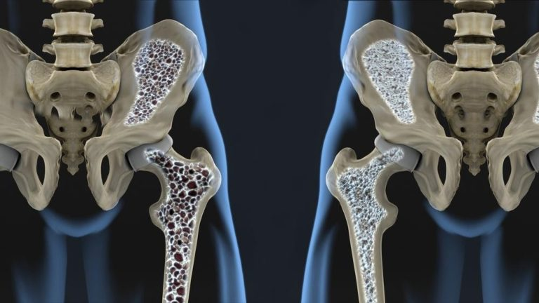 Understanding Osteoporosis   Risks, Treatment & Home Care Services